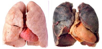 ảnh 2- trước và sau khi hút thuốc